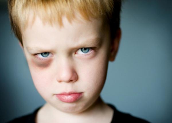 black-eye_boy_istock_8851542webpic