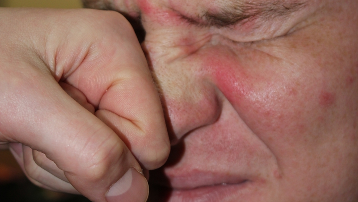 Подать в суд за сломанный нос все ученые